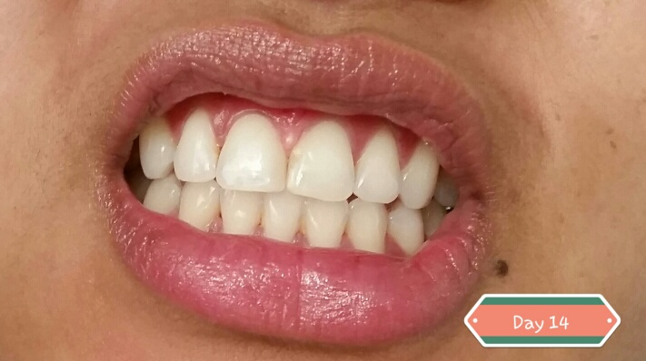 Whitening Teeth Using Crest 3d Luxe Glamorous Whitestrips Sokkha